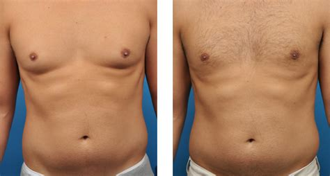 Loss of breast tissue and muscle mass forum on jpg 596x320