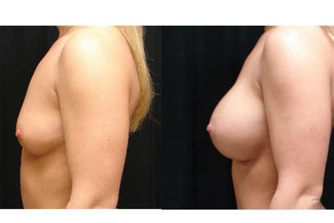 Find a breast augmentation doctor in virginia beach, va jpg 600x400